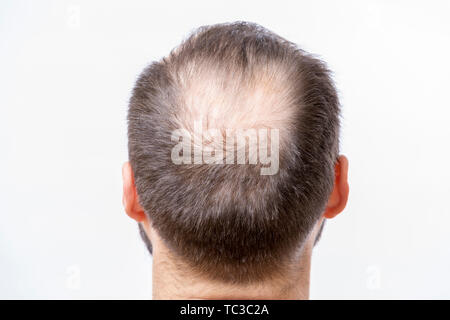 Bald man has a problem of head baldness and hair loss - Stock Photo