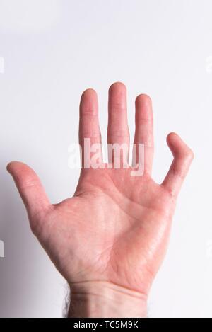 Broken finger. External ligament of the third articulation broken. - Stock Photo