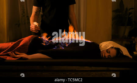 Chinese fire massage and therapy - Stock Photo