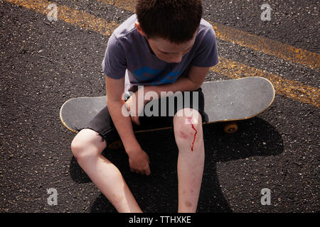 High angle view of boy with wounded knee sitting on skateboard - Stock Photo