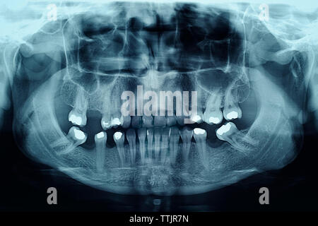 Dental X-Ray Showing Fillings in the Teeth - Stock Photo