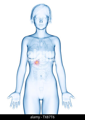 medically accurate 3d rendering of a female´s gallbladder cancer - Stock Photo