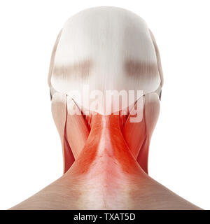 3d rendered medically accurate illustration of a painful neck - Stock Photo