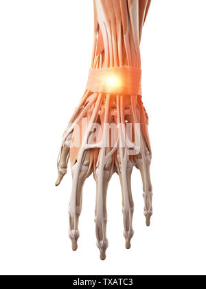 3d rendered medically accurate illustration of a painful wrist - Stock Photo