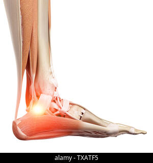 3d rendered medically accurate illustration of a painful ankle - Stock Photo