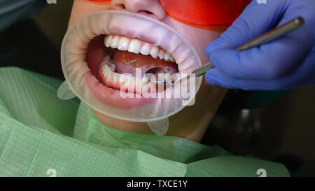 Dentist examines condition of teeth with help of dental mirror in patient's girl. Dental clinic. Health care. - Stock Photo