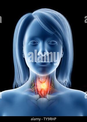 3d rendered medically accurate illustration of thyroid cancer - Stock Photo