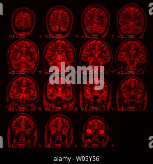 MRI of the brain on a black background with red backlight. Square photo - Stock Photo