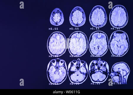 MRI of the brain on a black background with blue  backlight. Right  place for advertising inscription - Stock Photo