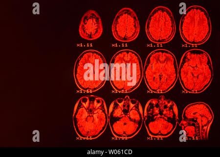MRI of the brain on a black background with red backlight. Medical background - Stock Photo