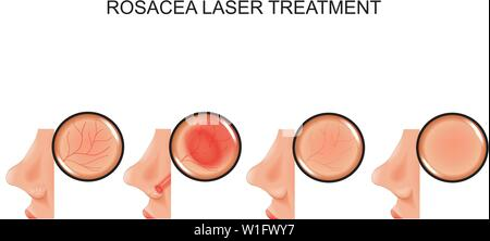 vector illustration of laser treatment of rosacea - Stock Photo
