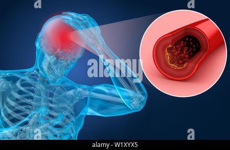 Brain stroke : 3d illustration of the vessels of the brain and causes of stroke - Stock Photo