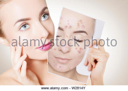 closeup portrait of woman with clean skin holding portrait with pimpled skin - Stock Photo