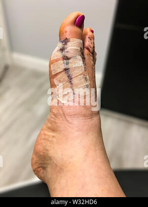 Day 10 after bunion and hammertoe surgery, right before the stitches were removed. - Stock Photo