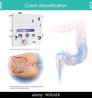 Colon detoxification. Sample illustration flushing the colon by using the water pressure pipe inserted into the patient anus. - Stock Photo