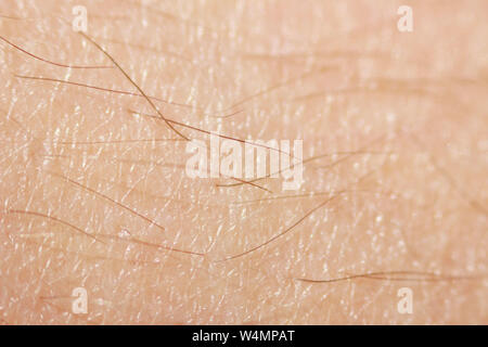 hairy legs before epilation with long black hair. Macro - Stock Photo