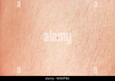hairy legs before epilation with long black hair - Stock Photo