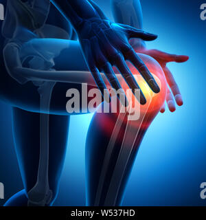 Strong pain in knee joint - 3D illustration - Stock Photo
