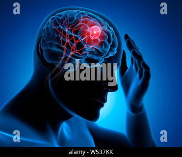 Head with brain and tumor - 3d Illustration - Stock Photo