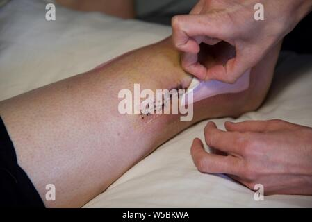 Surgical wound: removal of dressing from the right ankle of a female patient following surgical intervention to repair a broken ankle - Stock Photo