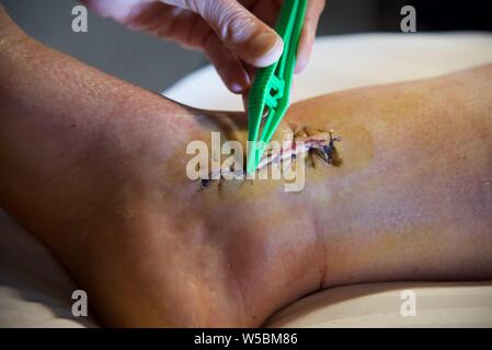 Surgical stitches: removal of surgical stitches from the right ankle of a female patient following surgical intervention to repair a broken ankle - Stock Photo