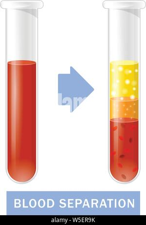 Test tube with blood after separation of platelets, PRP infographics, platelet-rich plasma - Stock Photo