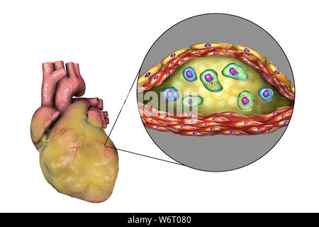 Heart disease, computer illustration. Diseased fatty heart and cross-section of an atherosclerotic plaque and its histological structure, such as necrotic centre, foam cells and T-lymphocytes. Its walls are made of smooth muscle cells and endothelium from the blood vessel. - Stock Photo