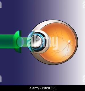 eyeball illlustration displaying prk show beams & lenses - Stock Photo