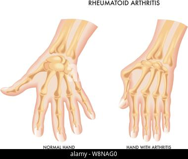 Medical illustration of the symptoms of rheumatoid arthritis of the hand. - Stock Photo