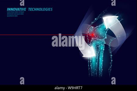 Human knee joint 3d model vector illustration. Low poly design future technology cure pain treatment. Recovery cure glowing arrow gel medicine vector - Stock Photo