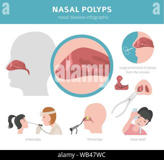 Nasal diseases. Nasal polyps causes, diagnosis and treatment medical infographic design. Vector illustration - Stock Photo
