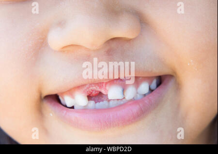 Close-up Of Smiling Child With Tooth Gap - Stock Photo