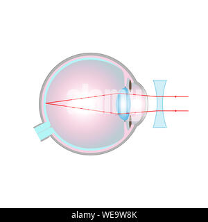 Vision disorder, illustration. Short-sightedness (myopia) corrected with a concave lens. - Stock Photo