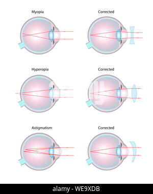 Vision disorders and corrective lenses, illustration. Short-sightedness/myopia (top), long-sightedness/hyperopia (middle), astigmatism (bottom). - Stock Photo