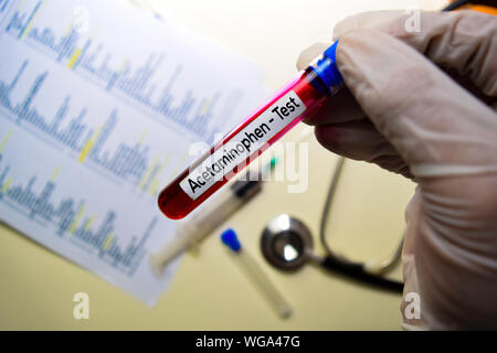 Acetaminophen - Test with blood sample. Top view isolated on office desk. Healthcare/Medical concept - Stock Photo