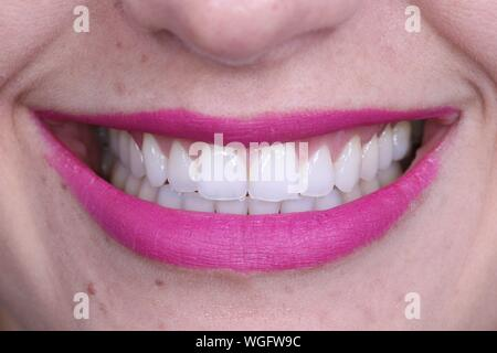 Extreme Close Up Of Woman With Pink Lips - Stock Photo