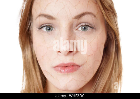 close up portrait of a young woman with dry skin condition - Stock Photo