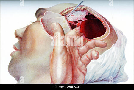 Intercranial hematome.Surgical treatment of the intracranial hemorrhage:the intracranial bleeding increases the skull internal pressure damaging the brain tissues. - Stock Photo
