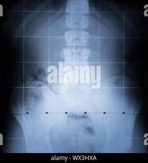 X Ray image of Spine and pelvis of human body - Stock Photo