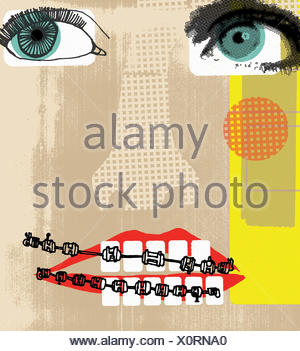 Collage face with teeth brace - Stock Photo