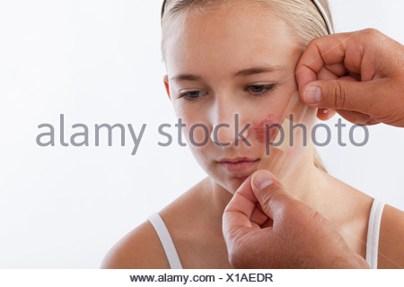 Hands applying adhesive bandage on girl's (12-13) face - Stock Photo