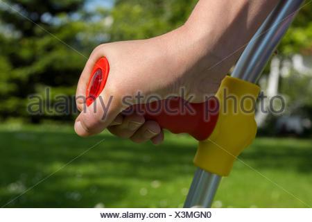 Kind mit Krücke, Detailaufnahme der Hand