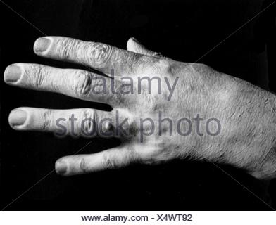Liszt, Franz, 22.10.1811 - 31.7.1886, Hungarian composer and pianist, his right hand, 1886, , - Stock Photo