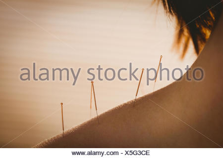 Young woman getting acupuncture treatment - Stock Photo