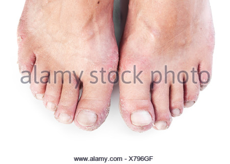 two male feet with eczema isolated on white - Stock Photo