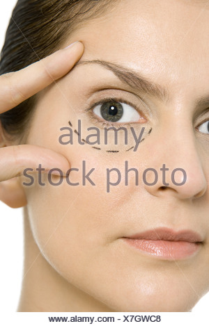 Woman with plastic surgery markings under one eye, touching face, looking at camera - Stock Photo