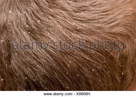 dandruff - Stock Photo