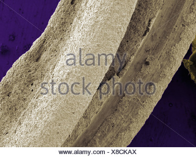 SEM of chemically deposited Silver on metallic substrates - Stock Photo