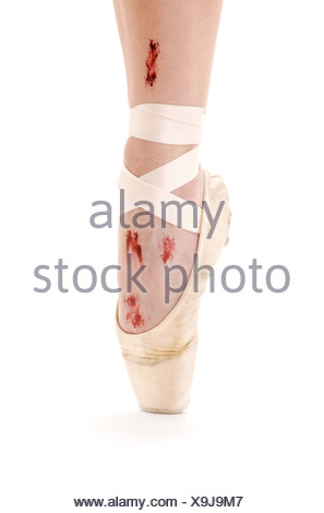 wounded foot in point shoe over white - Stock Photo
