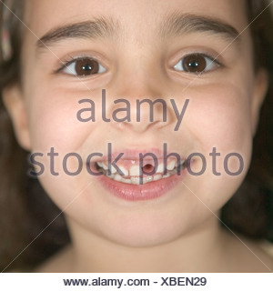 A girl missing a tooth - Stock Photo
